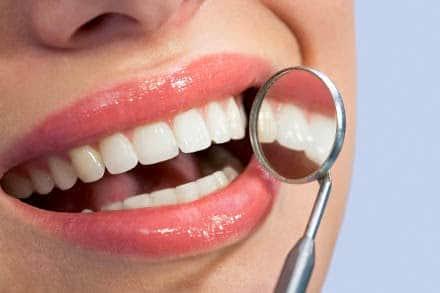 diferença entre clareamento dental interno e externo